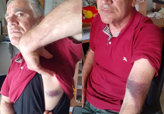 Ρεσιτάλ καταστολής στον Βόλο- Ξυλοδαρμοί και βασανισμοί από την αστυνομία